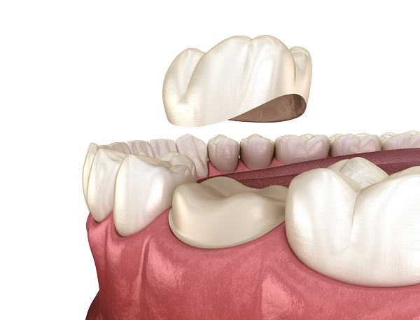 How To Extend The Life Of Your Dental Crown